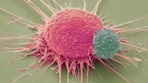 Rak piersi i medyczna marihuana