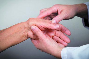 Reumatoidalne zapalenie stawów i CBD