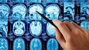 uszkodzenie mózgu i olej CBD