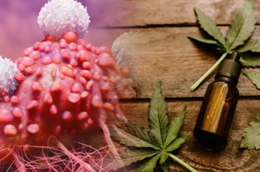 CBD i nowotwory. Czy warto włączyć kannabinoidy do terapii?
