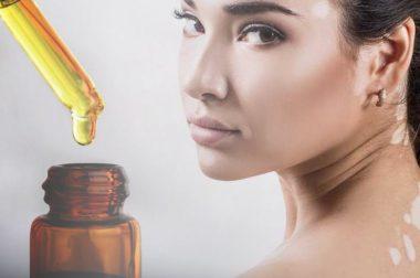 Czy produkty z CBD mogą pomóc chorym na bielactwo?