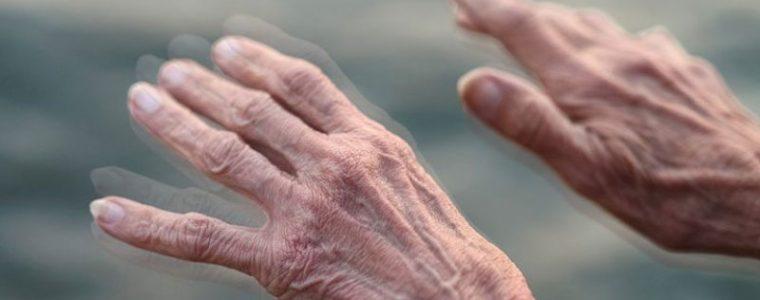 CBD na Parkinsona