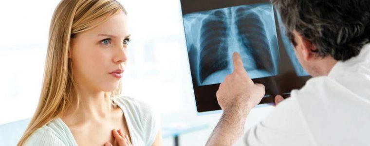 CBD astmy